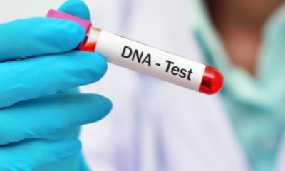More Nigerians are coming forward for DNA tests Nigerian Doctors say