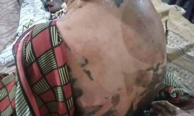 Woman pours hot water on her co wife and 4 year old stepdaughter in Kano