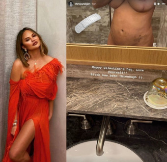 Chrissy Teigen 35 stripped off to show the extent of her scarred body on her social media.
